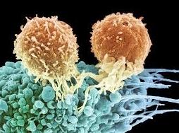 免疫細胞治療的新發展