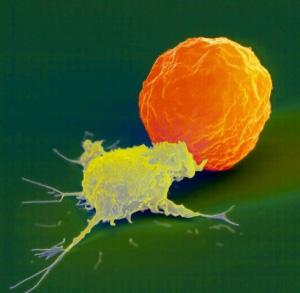 自體免疫殺手細胞治療